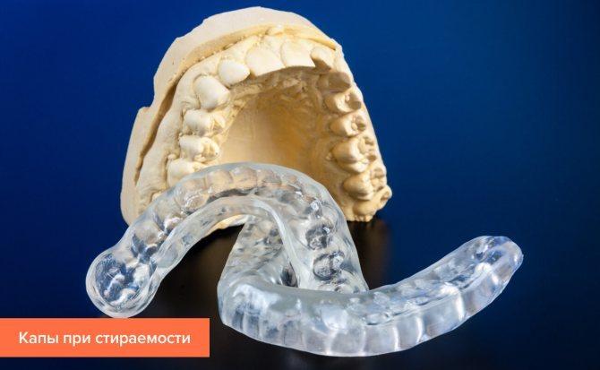 Фото капи від стирання зубів