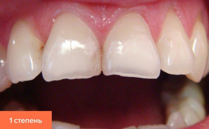 Фото першого ступеня стертості зубів