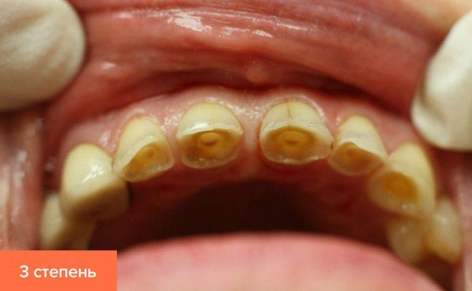 Фото третього ступеня стертості зубів