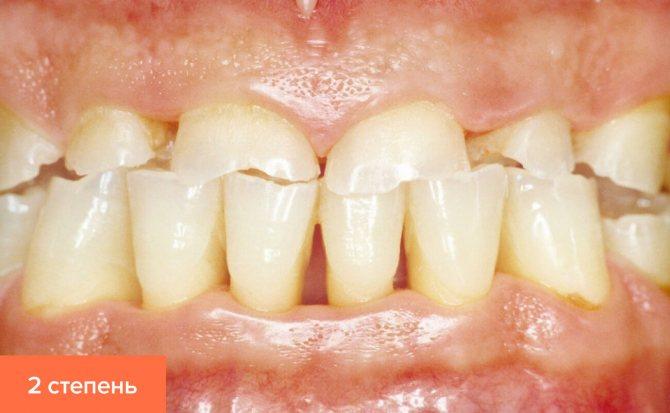 Фото другого ступеня стертості зубів