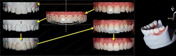 Локалізована форма підвищеного стирання зубів