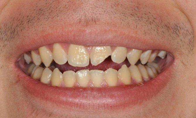 Відколовся шматочок від переднього зуба