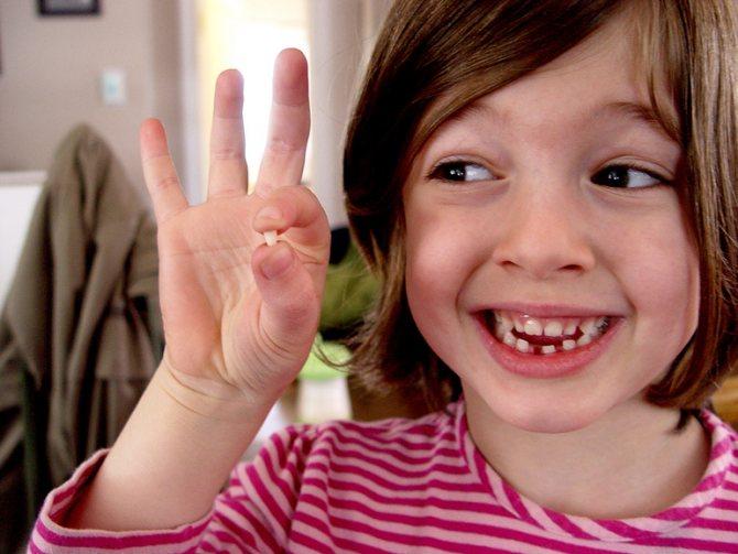 Відколовся зуб до чого сниться відколотий зуб