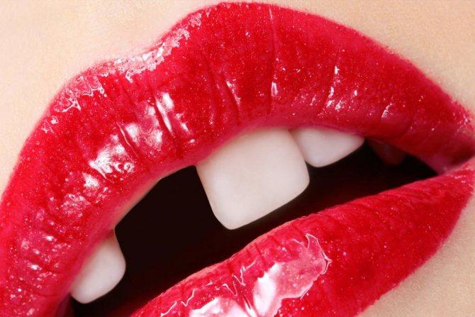 Відсутність зуба в роті