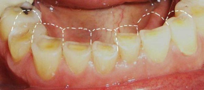патологічної стертості зубів