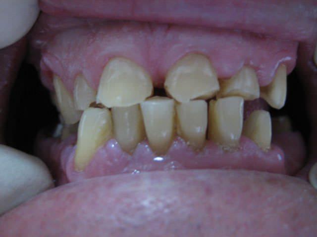 Стирання зубної емалі