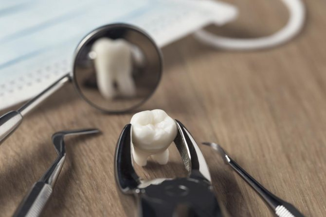 Зуб перед люстерком стоматолога
